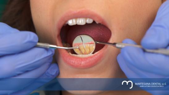 La prevenzione in odontoiatria